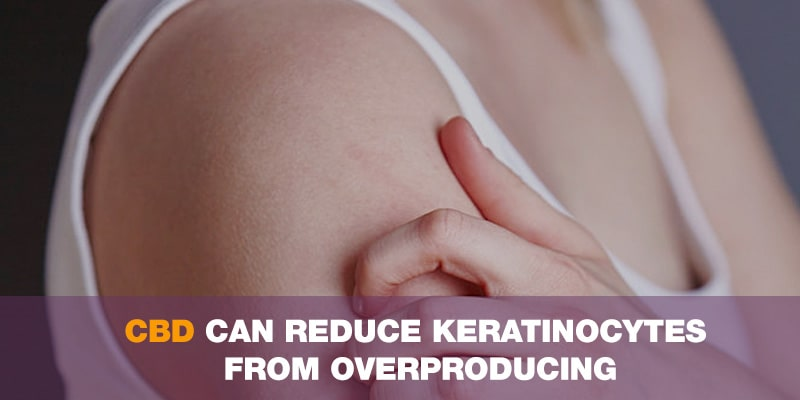 CBD can reduce keratinocytes from overproducing, as occurs in psoriasis
