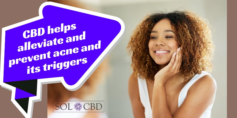 CBD helps alleviate and prevent acne and its triggers.