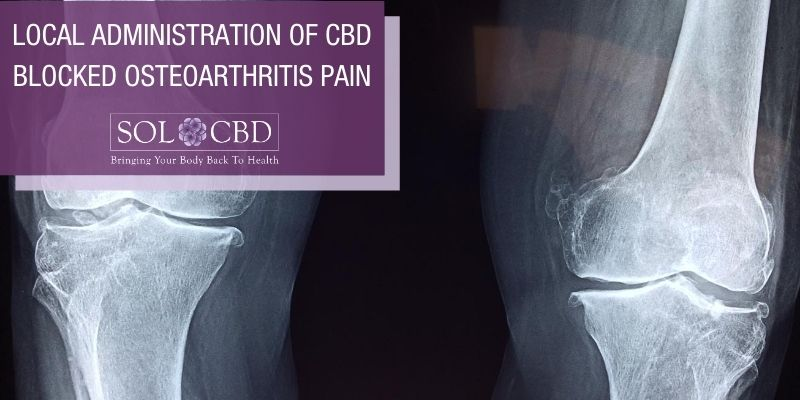 Topical CBD's potential to reduce the development of OA pain and nerve damage is incredibly exciting.