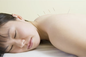 Natural Alternatives: Acupuncture