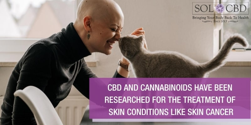 CBD has been researched for the treatment of skin conditions, such as severe itching, inflammatory skin disease, and skin cancer.