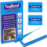 TagBand Skin Tag Removal Device - Chickadee Solutions - 1