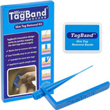 Micro TagBand Skin Tag Remover Device for Small to Medium Skin Tags - Chickadee Solutions - 1