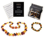 Baltic Amber Teething Necklace + Bracelet for Babies (Unisex) by AmberTouch -... - Chickadee Solutions - 1