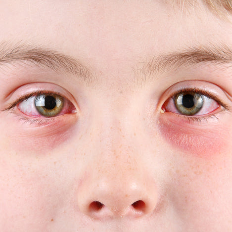 How to Protect Yourself and Your Children From Pink Eye