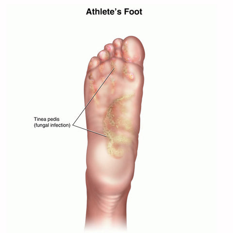 Athlete's Foot Infection: Causes, Cures