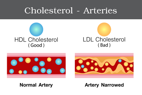 Atherosclerosis Blocked Arteries