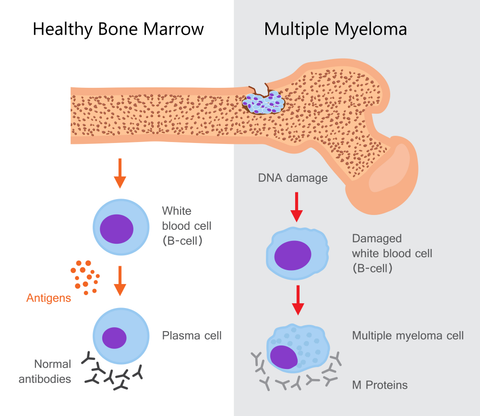 Multiple Myeloma Chart