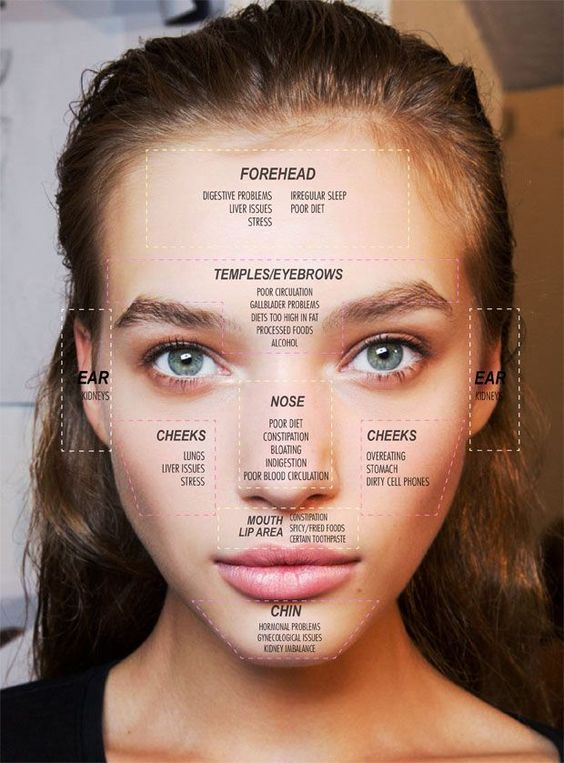 Acne Map