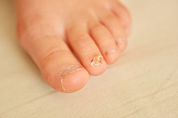 Ringworm Athlete's Foot