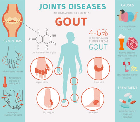 Gout Facts