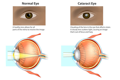 Cataract Eyes