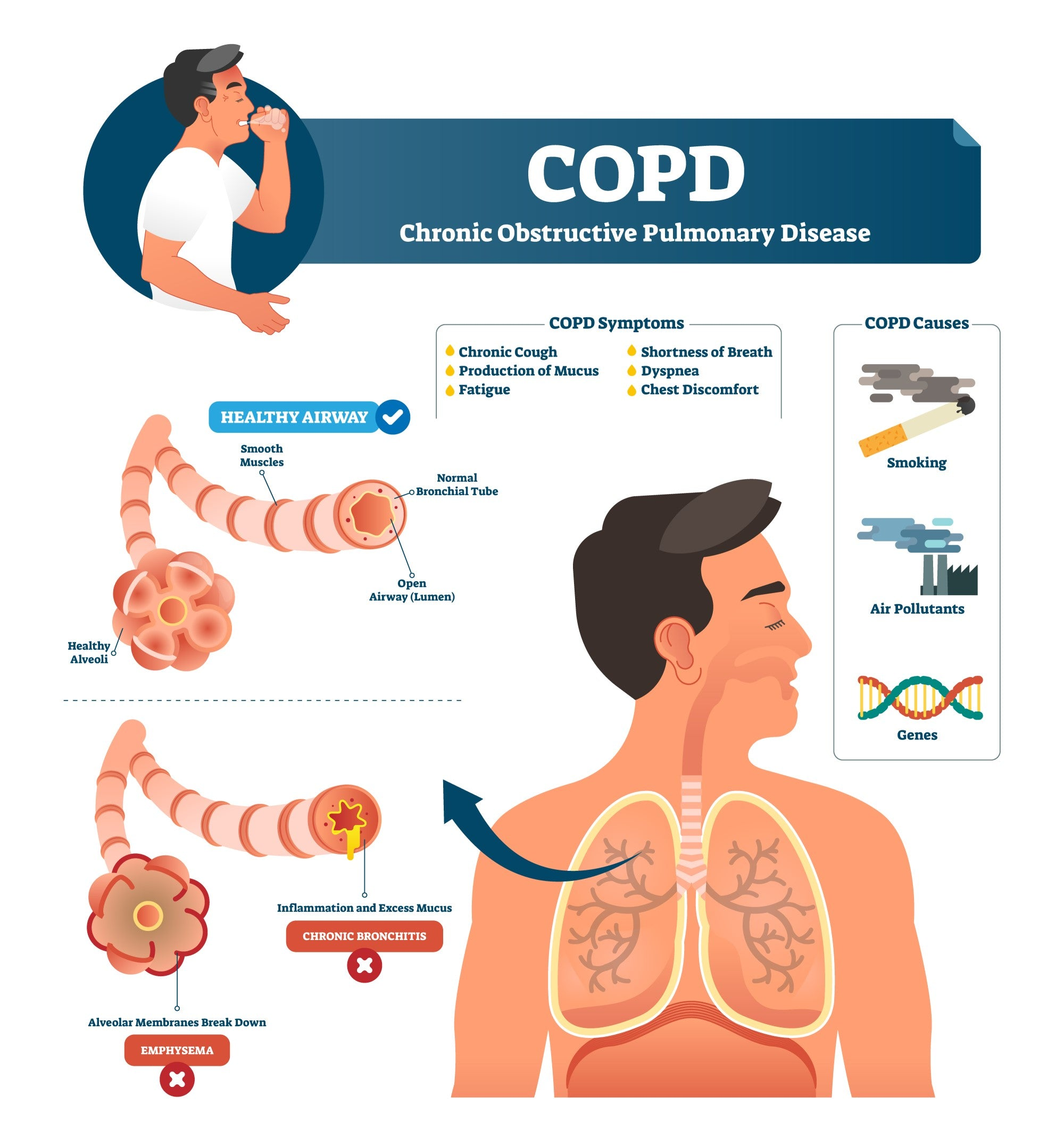 COPD Chronic Obstructive Pulmonary Disorder Lungs