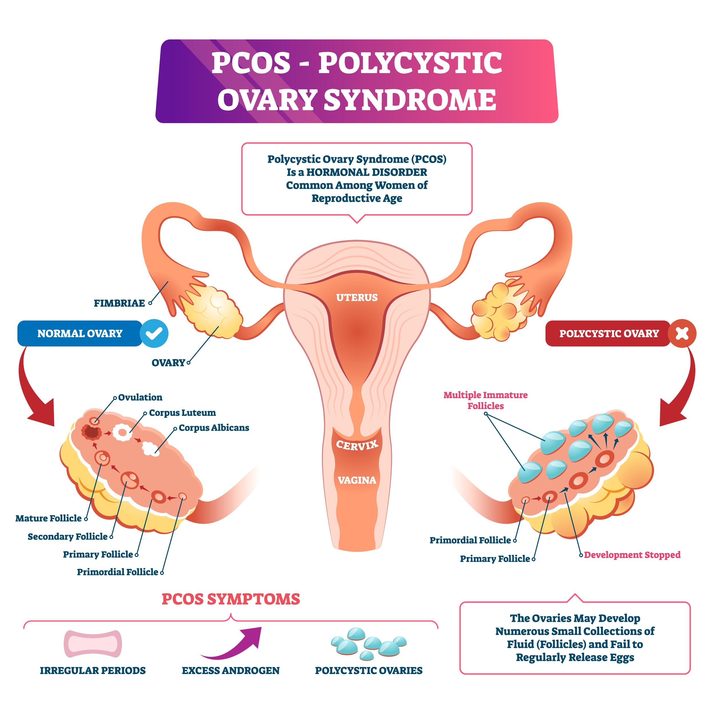 PCOS Physical Symptoms