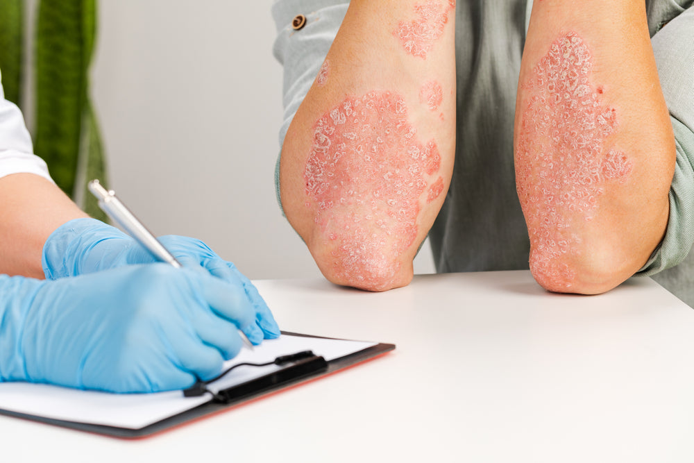 Eczema Awareness and Products at Mountainside Medical Equipment
