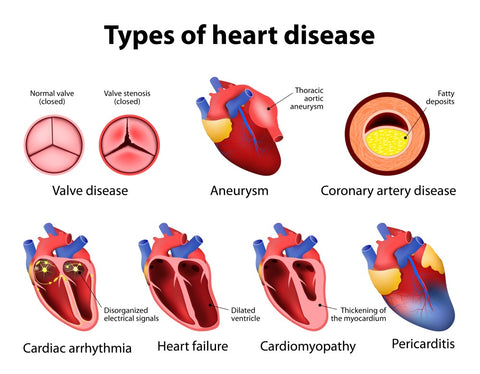 Types of Heart Disease