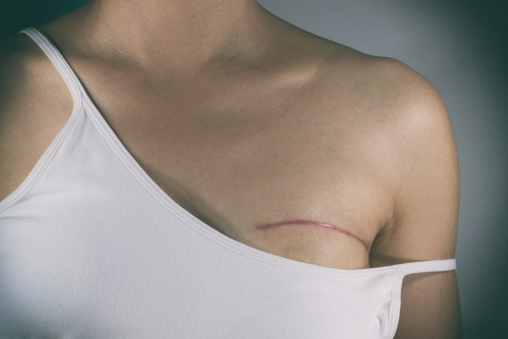 Breast Cancer Surgery Masectomy
