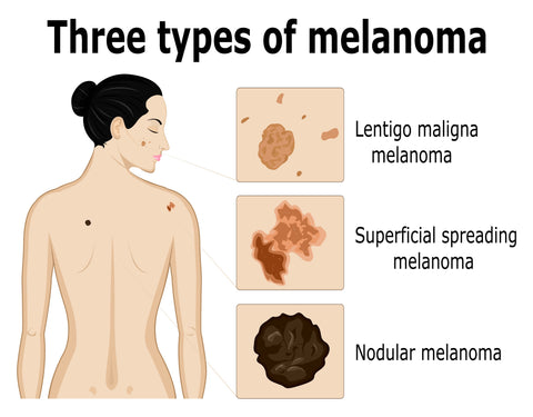 Types of Melanoma