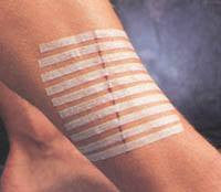Steri-Strip Reinforced Skin Closures R1547 - Incision Wound Closure Strips - Mountainside Medical Equipment