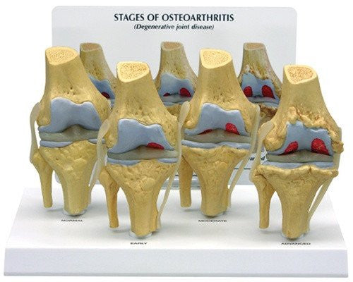 Buy Four Stages of Osteoarthritis Model in The Knee Joint online used to treat Educators - Medical Conditions