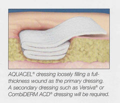 AquaCel Hydrofiber Dressings, Box for Wound Care by Convatec | Medical Supplies