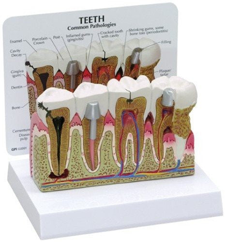Diseased Teeth and Gums Model - Dentists - Mountainside Medical Equipment