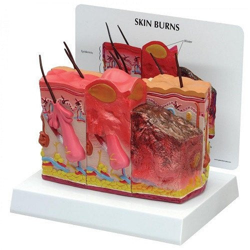 Anatomical Skin Model with Normal Skin & 1st, 2nd and 3rd Degree Burns