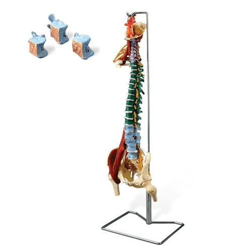 Buy Muscle Spine with Disorders with Stand online used to treat Sports Medicine - Medical Conditions