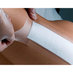 Buy Opsite Post Op Composite Dressings online used to treat Transparent Films - Medical Conditions