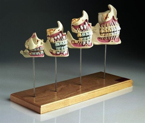 Four Teeth and Jaw Development Set Models, Newborn to Adult