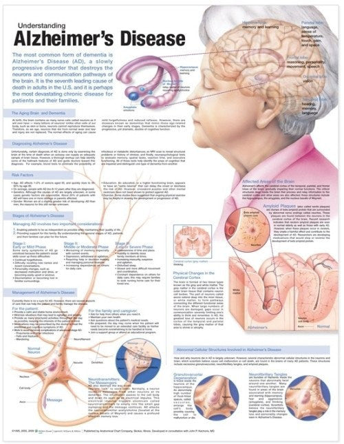 Understanding Alzheimer's Disease Informational Poster - Alzheimer's - Mountainside Medical Equipment