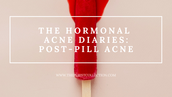 The Hormonal Acne Diaries: Post-Pill Acne