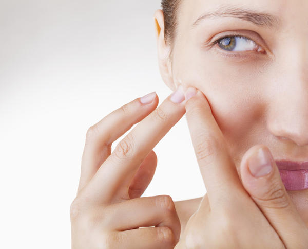 Treating Pimples Naturally