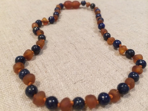 ADHD Teething Inflammation Raw UnPolished Cognac Lapis Lazuli Baltic Amber Necklace For Baby, Infant, Toddler, Big Kid.