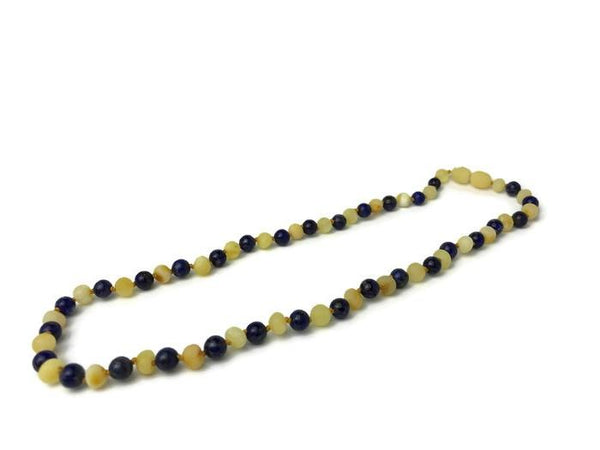 Baltic Amber Necklace - Luxury Baltic Amber Necklace Arthritis Raw Polished 19 Inch Teen Adult