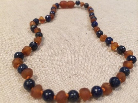 Baltic Amber Necklace - ADHD Teething Inflammation 15 Inch Raw UnPolished Cognac Lapis Lazuli Baltic Amber Necklace For Pre-Teen And Teen