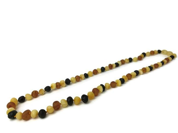 Baltic Amber Necklace - Adult Baltic Amber Arthritis Carpal Tunnel Sciatica Migraine Back Pain