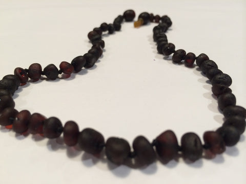 Baltic Amber Teething Necklace Raw Cherry Newborn Pop Clasp 10.5 To 11 Inch Infant Fever Cold Red Cheeks Fussiness Drool