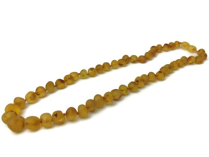 Raw Unpolished 17 Inch Honey Baltic Amber Necklace For Big Kid, Child, Teen, Or Adult