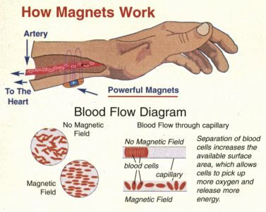 how magnetic therapy works promagnet