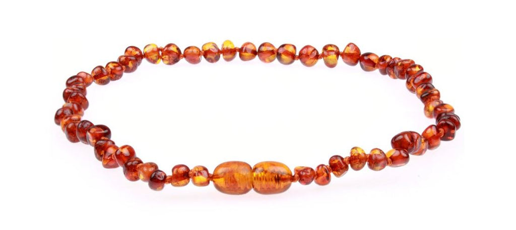 Are Amber Teething Necklaces Safe?