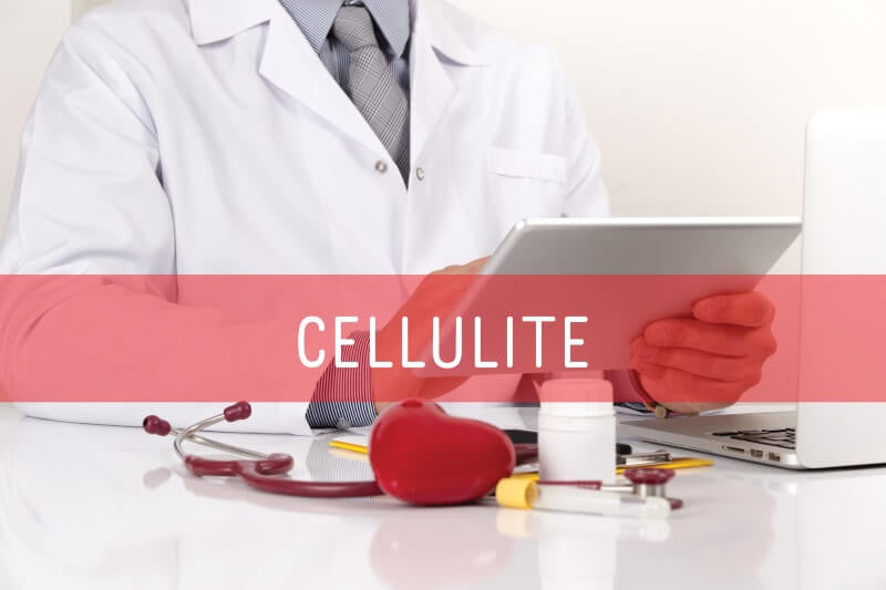 Can Cellulite Be Treated