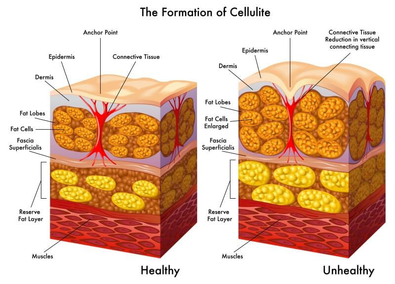 Cellulite Symptoms and Causes