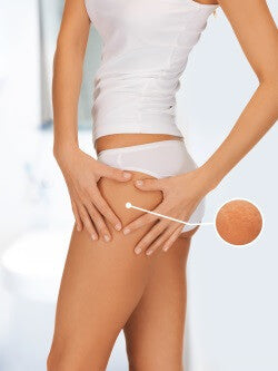 Cellulite Symptoms Myths