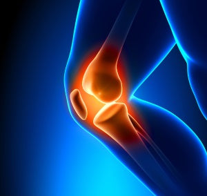 Magnesium supplements and joint pain