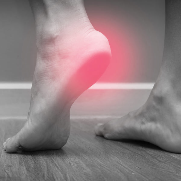 PLANTAR FASCIITIS AND THE BENEFITS OF SPLINTING