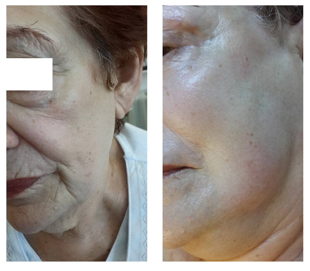 Tightening and firming facial cream
