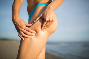 Woman pinching cellulite on her upper thigh