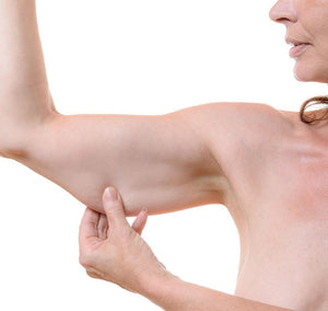 Woman with loose arm skin pinching under arm