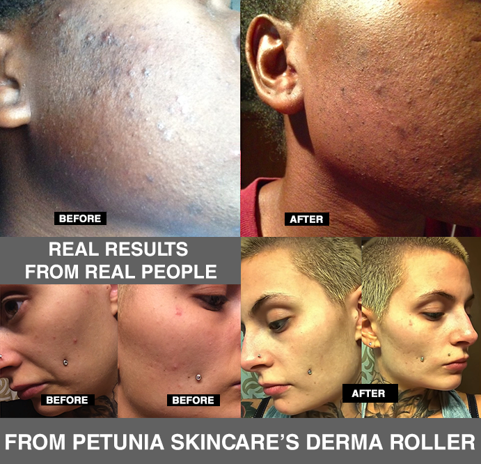 Petunia Skincare Derma Roller Before & After